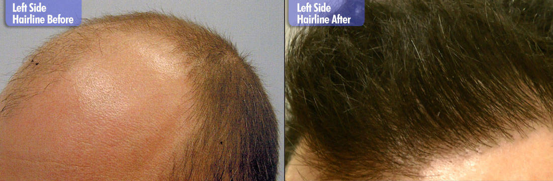 White Male 7200 Grafts Before & After Left Side