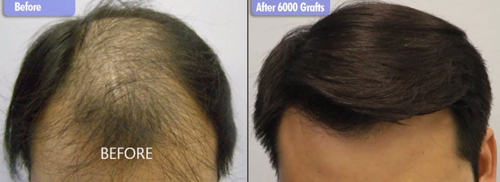 Asian Male Norwood 6 6000 Grafts  Before & After Front
