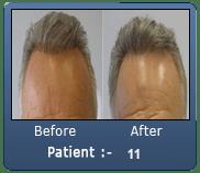 Old Hair Transplant Repair 2800 Grafts