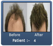 Mid Brown Hair 3450 Grafts Male