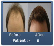 3655 Grafts Before & After