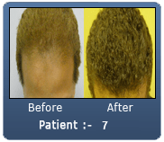African American Male 2200 Grafts Frontal Region