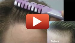Indian Client Gives His Honest Hair Transplant Review   Toronto ON   (416)-747-7873