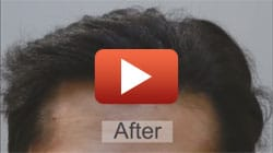 Amazing Medical Hair Restoration Toronto ON | (416)-747-7873