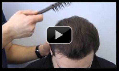 3300 Graft Hair Transplant