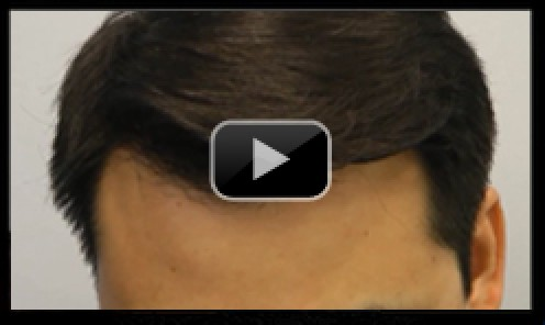 Asian Male Hair Transplant Video