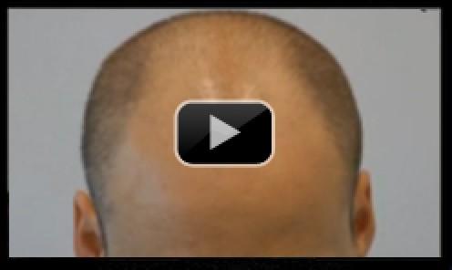 3700 Graft FUT Hair Transplant