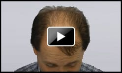 4200 Graft Hair Transplant Norwood 7
