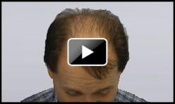 4200 Graft Hair Transplant Norwood 7