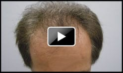 High Density Hair Transplant