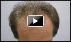 High Density Hair Transplant